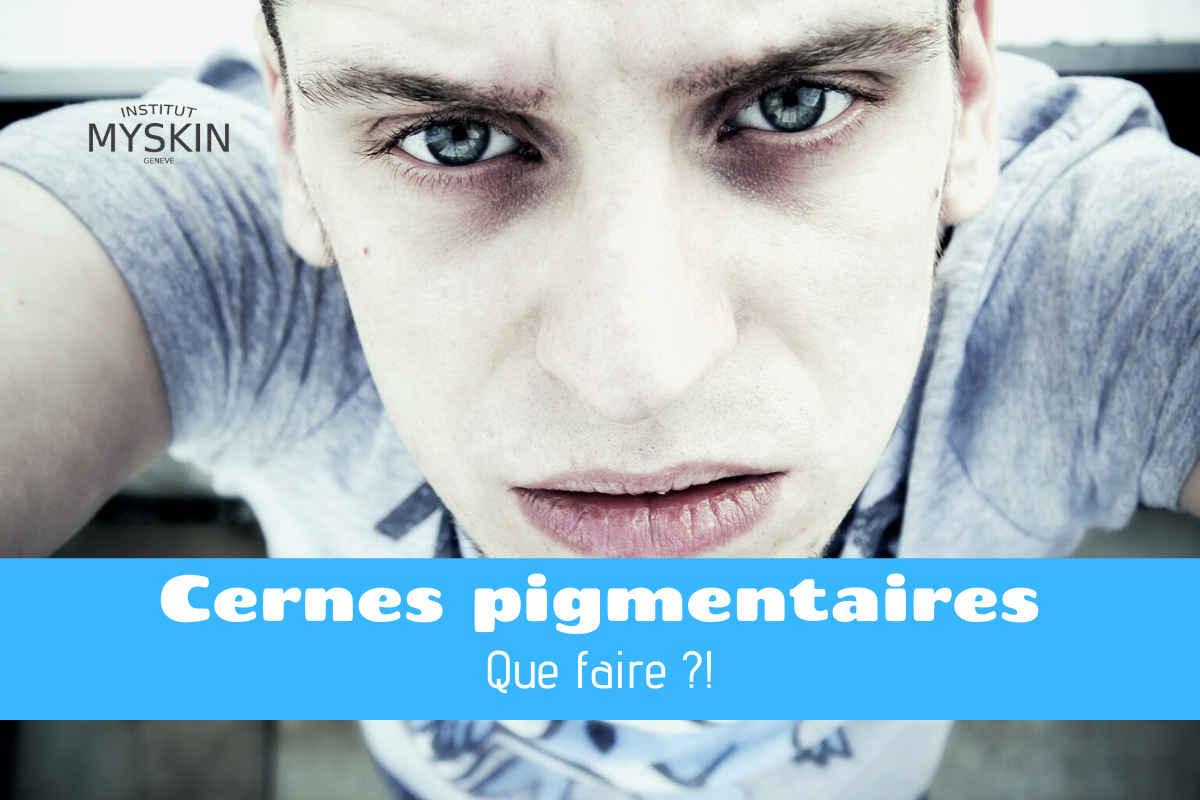 Cernes vasculaires, cernes pigmentaires : Comment traiter et enlever les cernes sous les yeux avec des soins naturels et des traitements spécifiques au contour de l'œil.